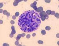 toxoplasmose2